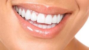 Teeth Whitening in Birmingham