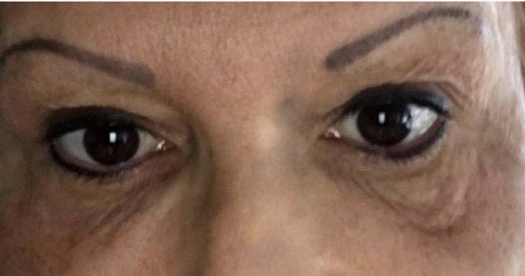 Dark eye circles