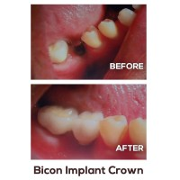 bicon-implant-crown