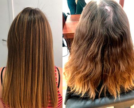 Tratamiento de enzimoterapia en peluquerias en Córdoba