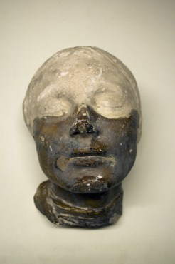Fig 1: Repair of a death mask: Repair by J. Giusti & Co. (A) to a cast by C. Smith & Sons (B), perhaps similar to documented repairs for the GSA.(Archive Reference: GST/8)