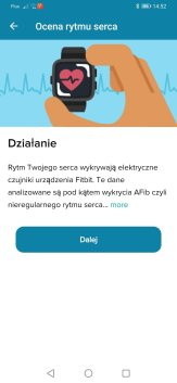 Fitbit Sense test EKG (2)