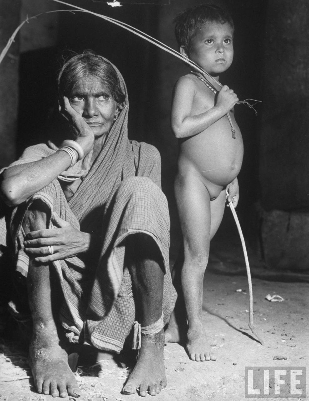Starving Indian woman with swollen ankles & feet because she suffers from dropsy as young daughter stands by with swollen belly from hunger during famine crisis. (Photographer - Margaret Bourke-White; Date taken-1946; picture courtesy - life.com). Click for larger image.