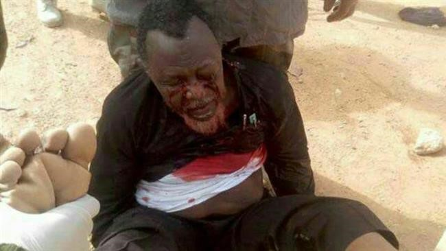 The Nigerian Army Confirms a brutal arrest of this Shia Leader, Sheikh Zakzaky.