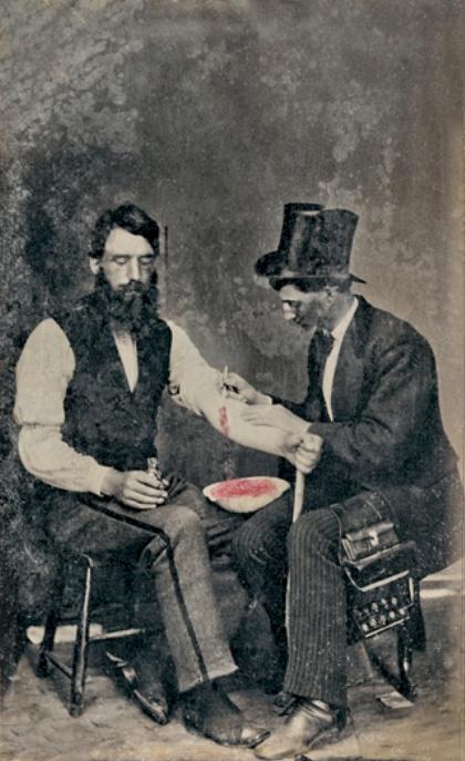 Museo de la Homeopatía - Médico practicando una sangría (2).