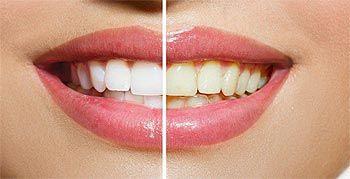 Blanqueamiento dental Santander