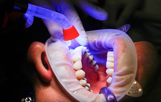 Surmontez votre peur du dentiste!
