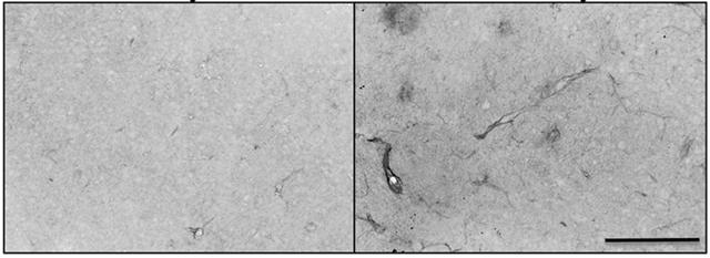 tissu-neurovasculaire-rat-espace