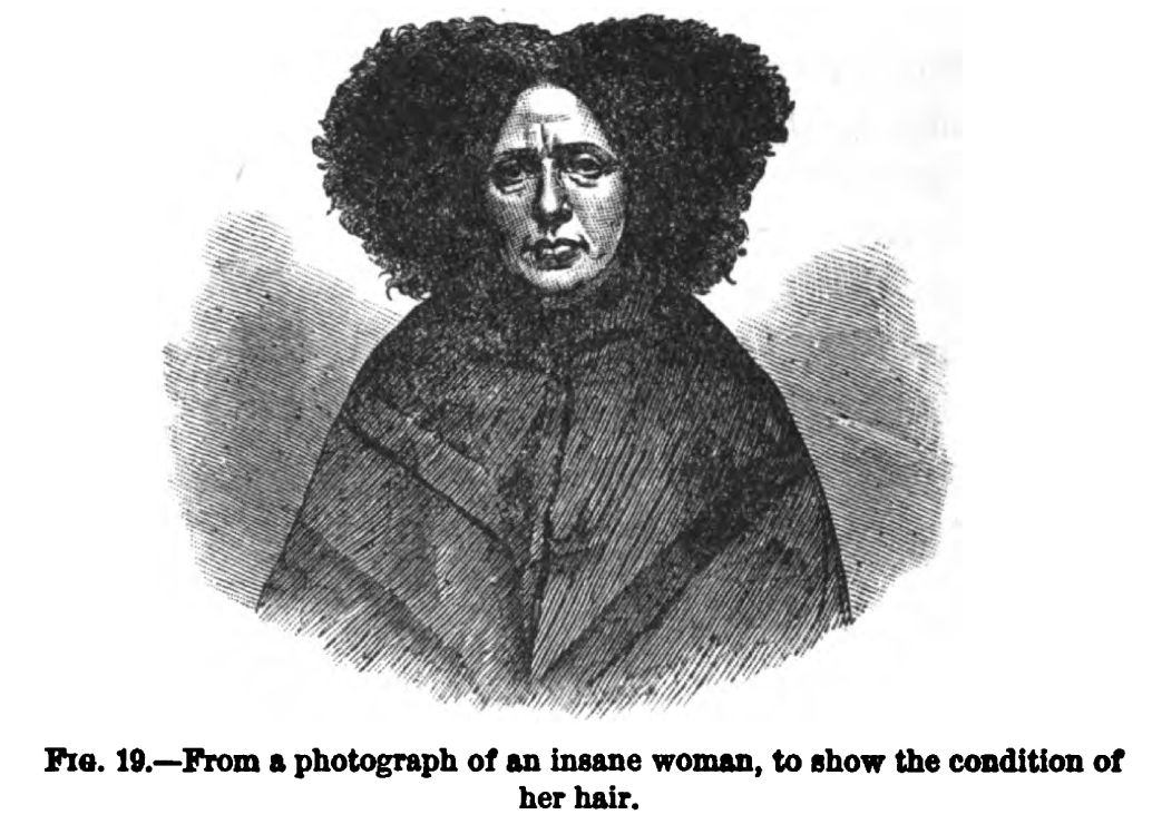 Photograph of an Insane Woman. Fig. 19