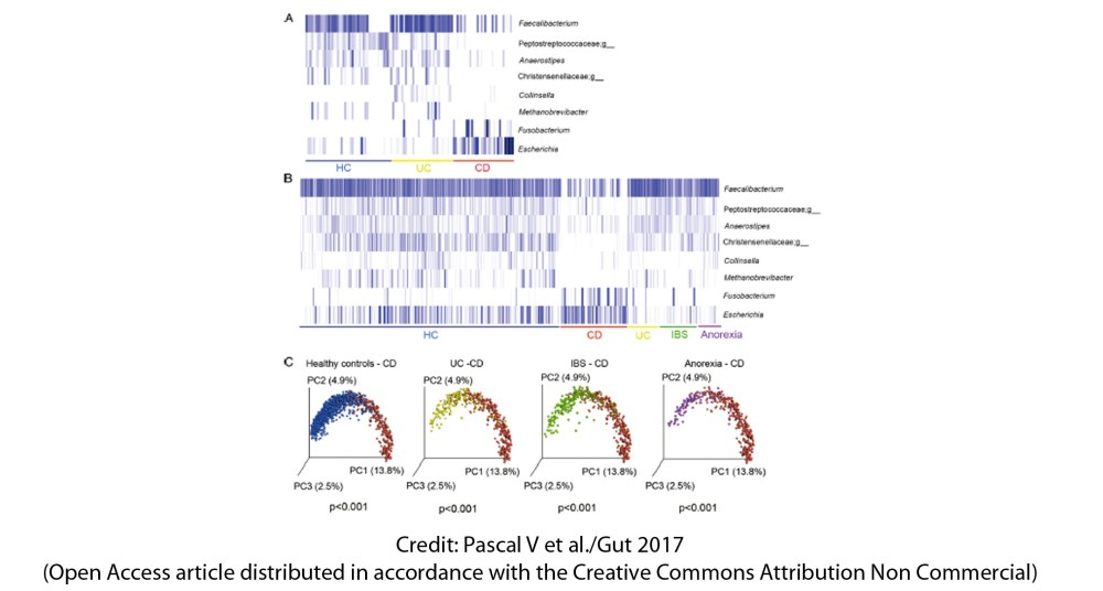 medium resolution of gut microbiome in crohn s disease cd and ulcerative colitis uc the two main forms of inflammatory bowel disease ibd has been previously shown to
