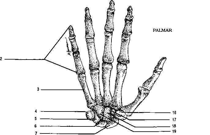 Blank Fill In The Hand Bones Diagram Sketch Coloring Page