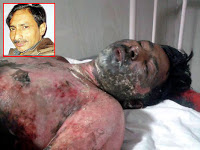 पत्रकार जगेन्द्रसिंह की हत्या : क्या यही लोकतंत्र है ?