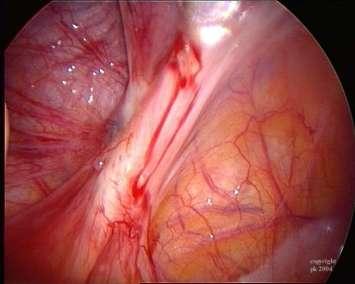 endometriose beelden