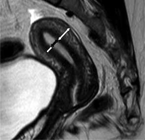 endometriose beelden adenomyose