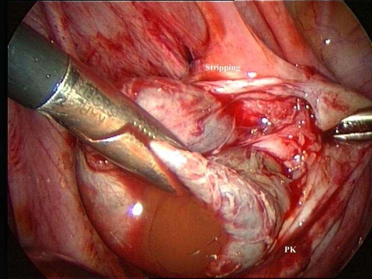 cystische endometriose beelden