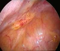 endometriose, laparoscopische chirurgie, pelvische pijn, images