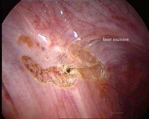 typische endometriose beelden