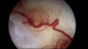 Angiogenesis inside a superficial ovarian endometriotic implant