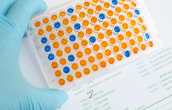The Ultimate Guide on New Generation of HIV-1 p24 Antigen ELISA Kit 2.0