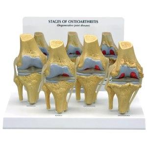 GBM032-Osteoarthritis_Knee
