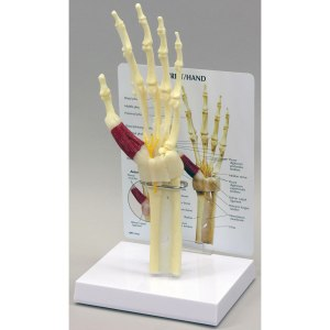 GBM043-Hand-Wrist-Carpal-Tunnel-Syndrome