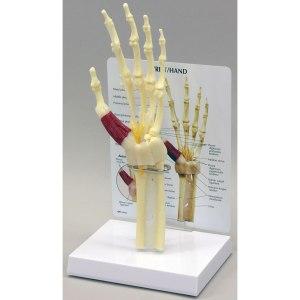 GBM043-Hand-Wrist-Carpal-Tunnel-Syndrome