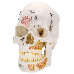 zjy395L-Skull_10_Part
