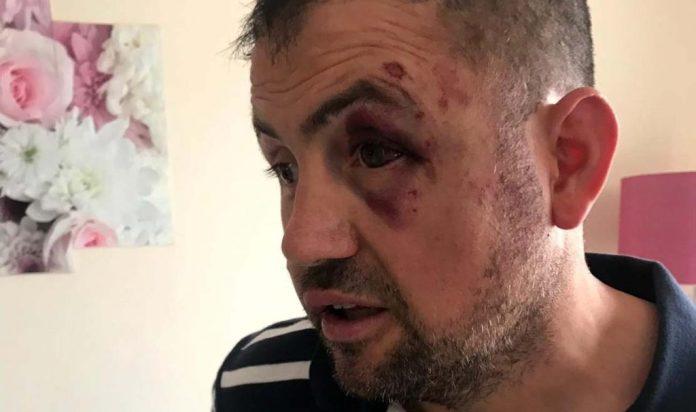 Haftanin gazisi demir çubuklarla dövüldü