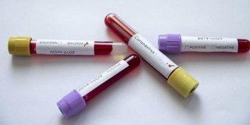 Almanya 47 İtalyan koronavirüs hastasını alıyor
