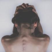 Miastenia Gravis: causas, diagnóstico y tratamiento