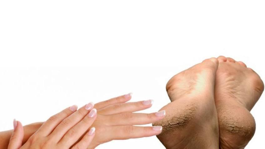 Ungüento para manos, pies y labios resecos