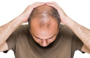 Hair loss causes chemo