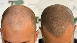 Hair Tattoo - Scalp micropigmentation