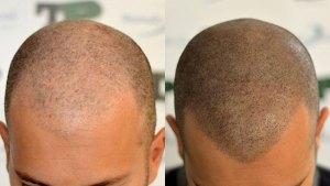Hair Tattoo - Scalp micropigmentation