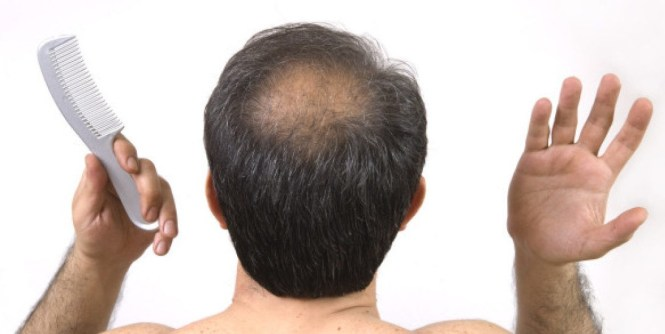 Hair loss treatment scams