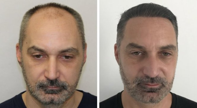 Hair transplant result after 12 months