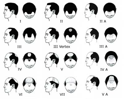 How to prevent baldness in men naturally