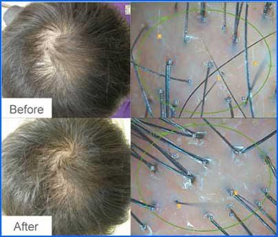 Biomimeticmesotherapybaldnessalopeciacure Adorable Male Pattern Baldness Cure Discovered