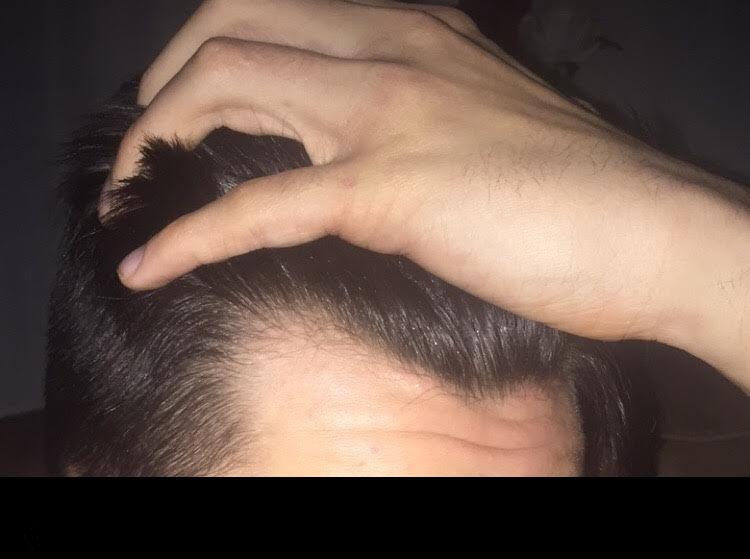 Receding or maturing hairline