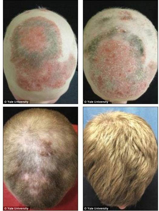 JAK Inhibitors For Hair Loss  Before And After Pictures 4