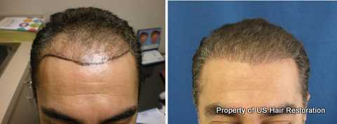 u s hair restoration before and after photos hair loss specialists