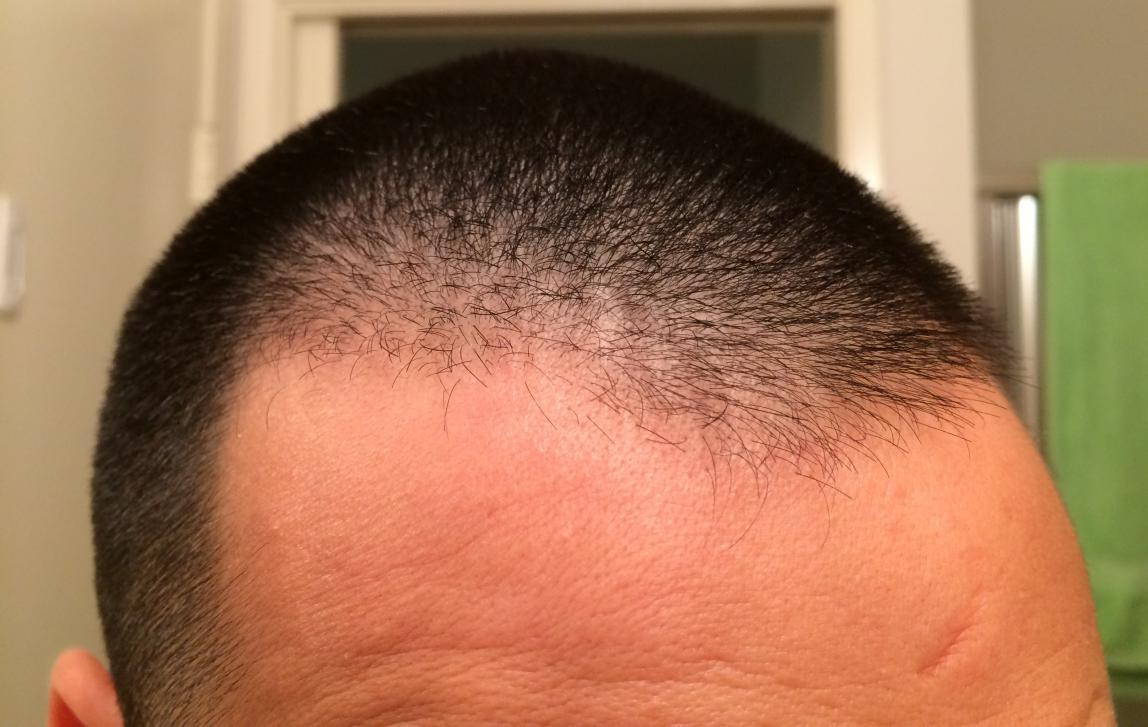 Is This Diffuse Thinning Problems With Thyroid Hairlosstalk Forums