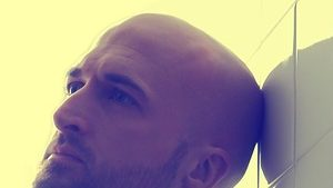 Do You Suffer From Male Pattern Baldness?