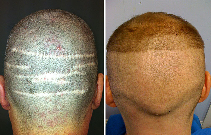 FUE Vs FUT Hair Transplant Full Detail