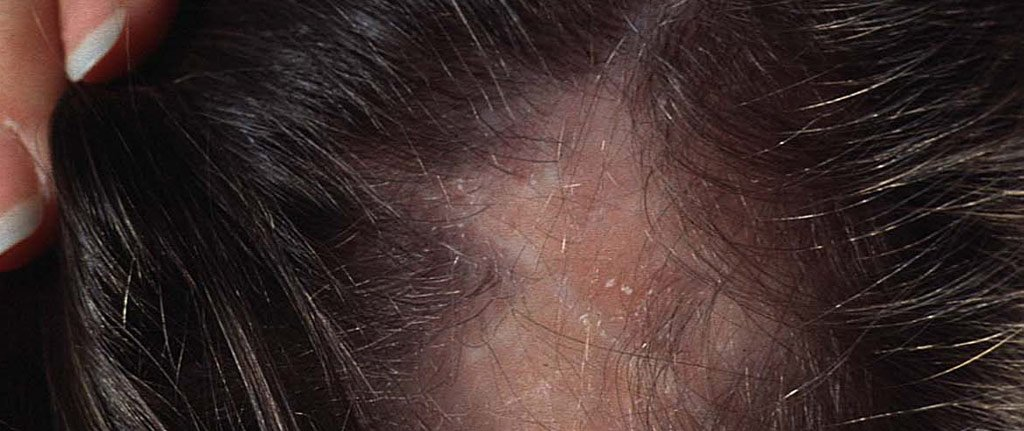 Lupus Hair Loss How To Deal With Lupus Hair Loss