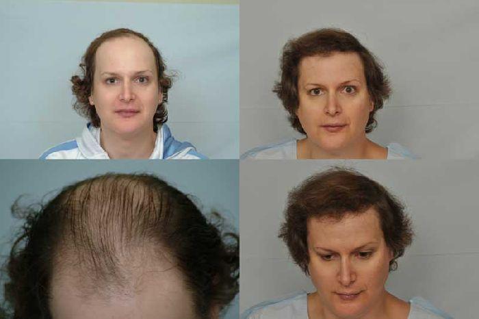 from Kash transgender hormones mtf hair loss
