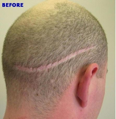 hair transplant strip scars