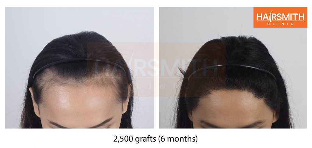 Hair transplant 6 months review