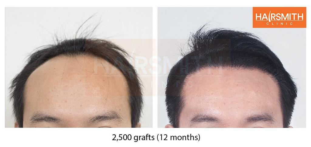 Hair transplant 12 months review
