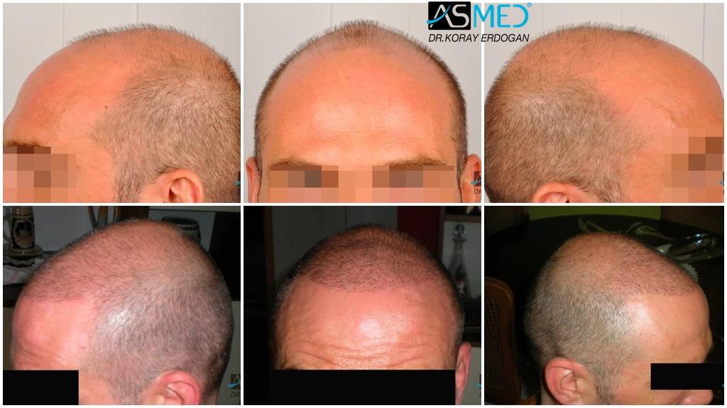 ASMED  Hair Transplant Results Gallery  Norwood 6